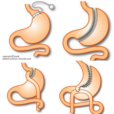Spécialistes dans la chirurgie de l'obésité